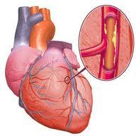 colesterol S